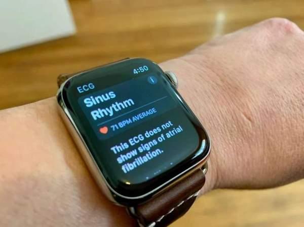 Приложение ЭКГ для Apple Watch появится в Южной Корее и России